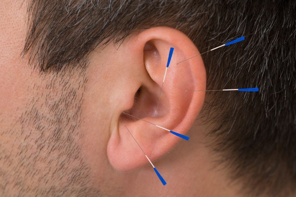 Acupuncture Treatment-What all diseases can acupuncture treat?